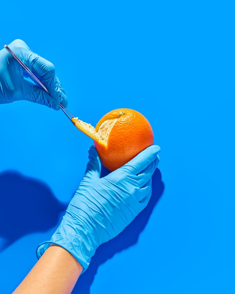 ORANGES | Rich in vitamin C, which can increase the production of certain immune cells in the body. These cells can control overactive immune reactions in autoimmune diseases like lupus