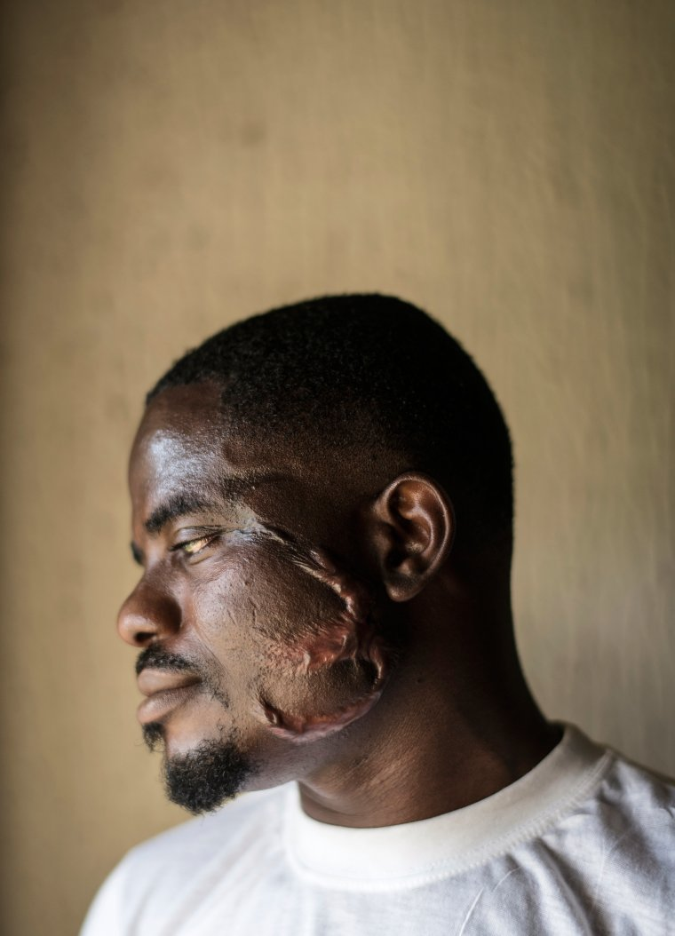 Sunday Iabarot, 32, shows the scars on his face made by a Libyan trafficker who held him captive; he now lives in a shelter in Benin City, Nigeria