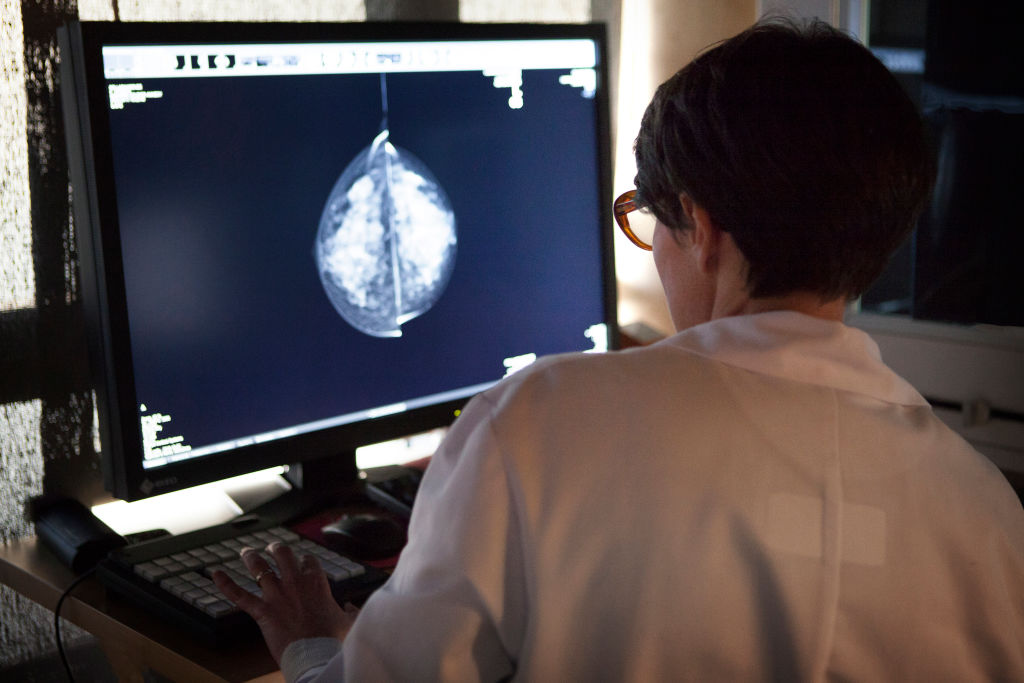 A radiologist looks at the results of mammograms in France.