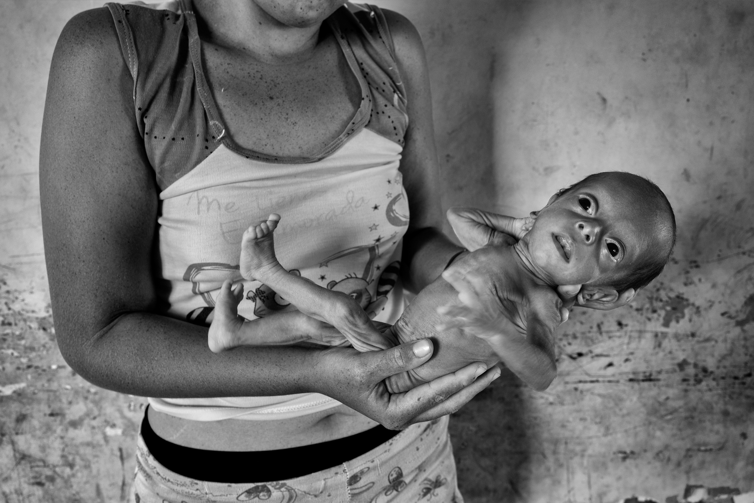 Katherine Castilla, 19, holds her baby girl Sarangeli, who suffers from malnutrition. Castilla lives in the same neighborhood as Blanco.