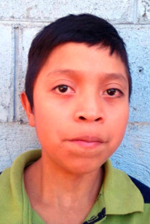 In this March 2017 photo released by Jimmy Cristian Gutierrez Garcia, the teacher of Juan de Leon Gutierrez, Juan poses for his school portrait in El Tesoro village, Camotan, Guatemala.