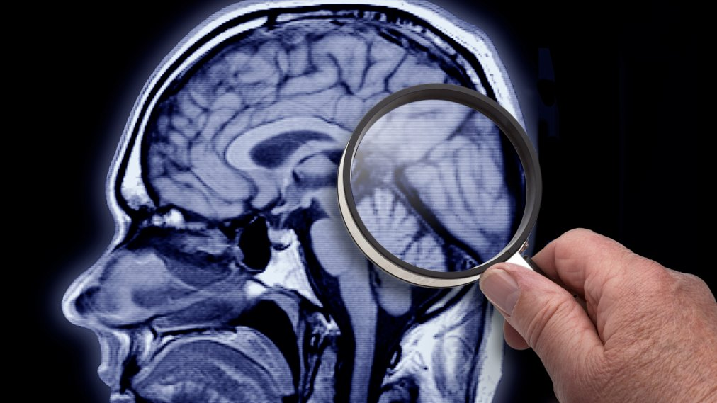 It May Be Possible to Counter Some of the Genetic Risk of Alzheimer's With These Lifestyle Changes