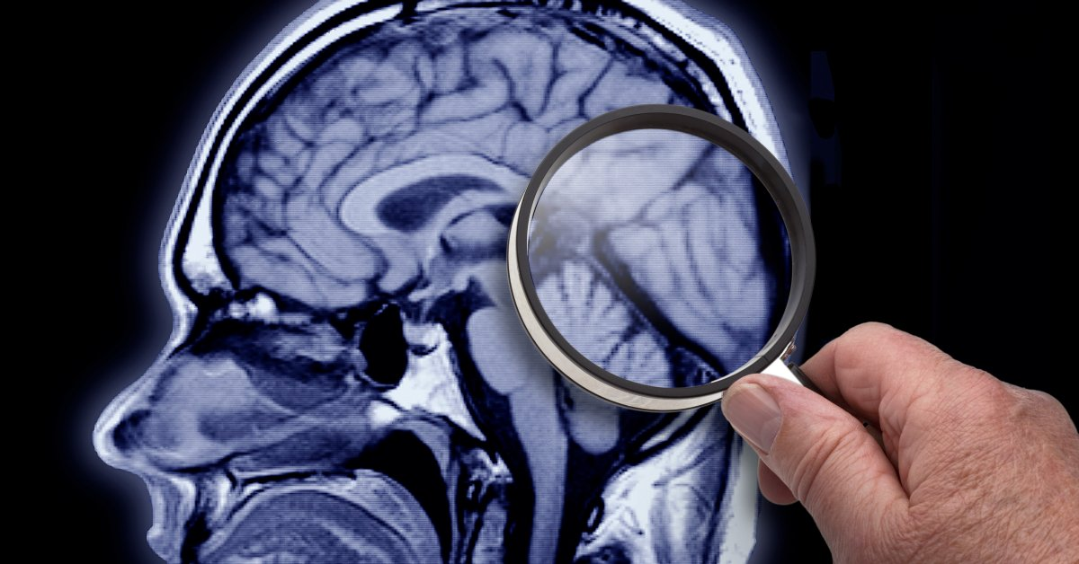 It May Be Possible to Counter Some of the Genetic Risk of Alzheimer's