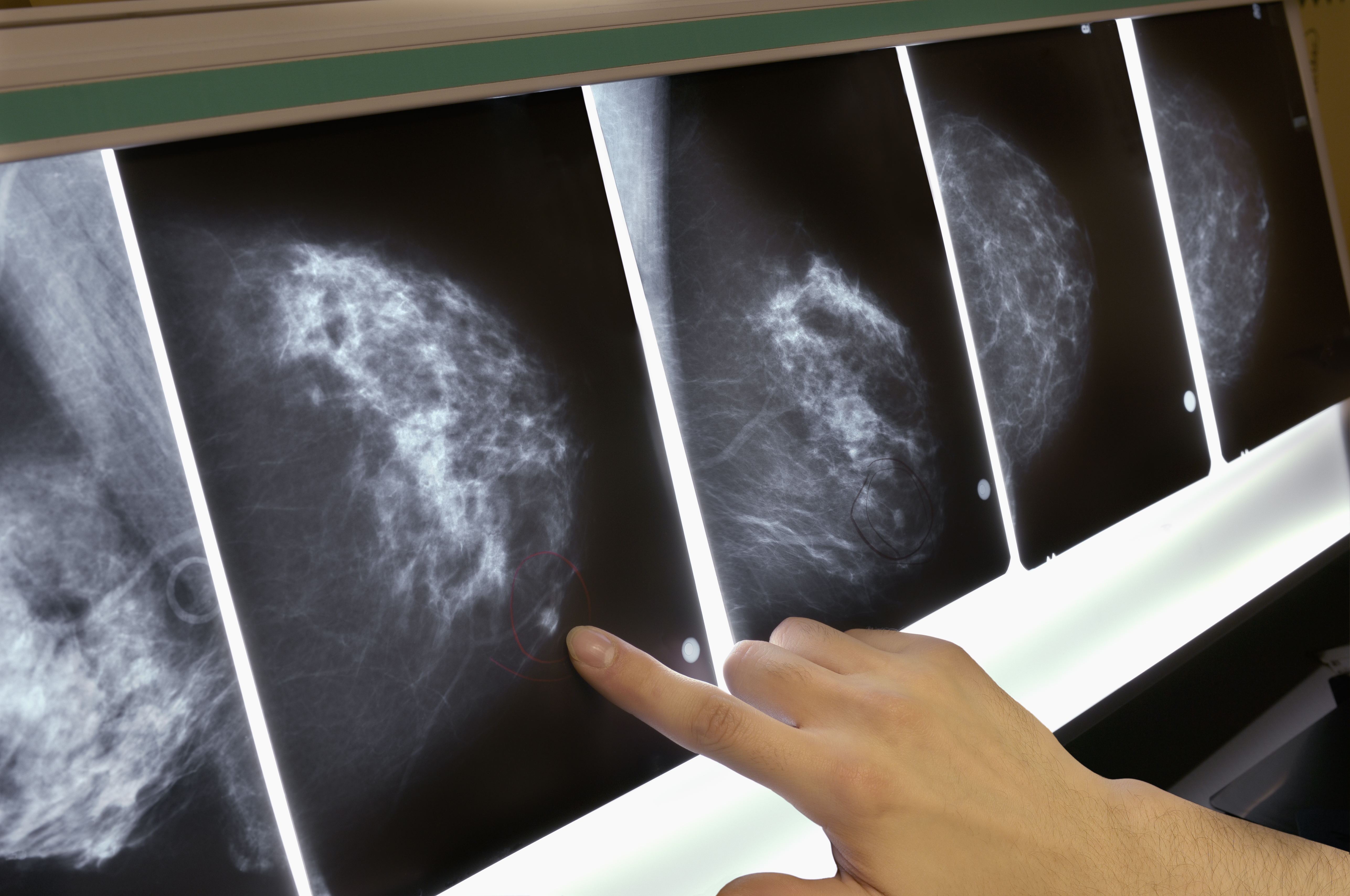 Promising Blood Test Could Help to Predict Breast Cancer Recurrence