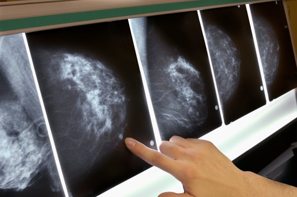 A New Blood Test For Breast Cancer Could Stop Recurrences | Time
