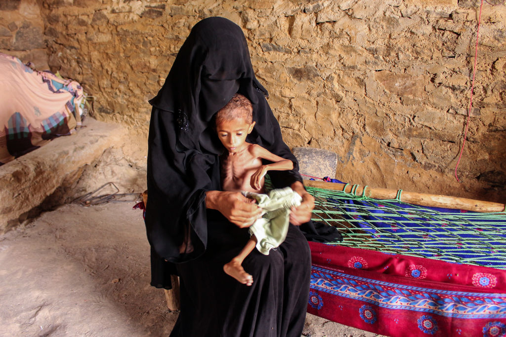 Moaz Ali Mohammed, a two-year-old Yemeni boy from an impoverished family in the Bani Amer region, who suffers from acute malnutrition and weighing eight kilograms, sits on his mother's lap at their house in the Aslam district in the northern Hajjah province on July 28, 2019.