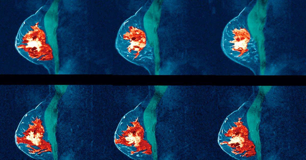 Новое исследование показывает, что женщины с плотной тканью молочной железы могут извлечь пользу из регулярных МРТ thumbnail