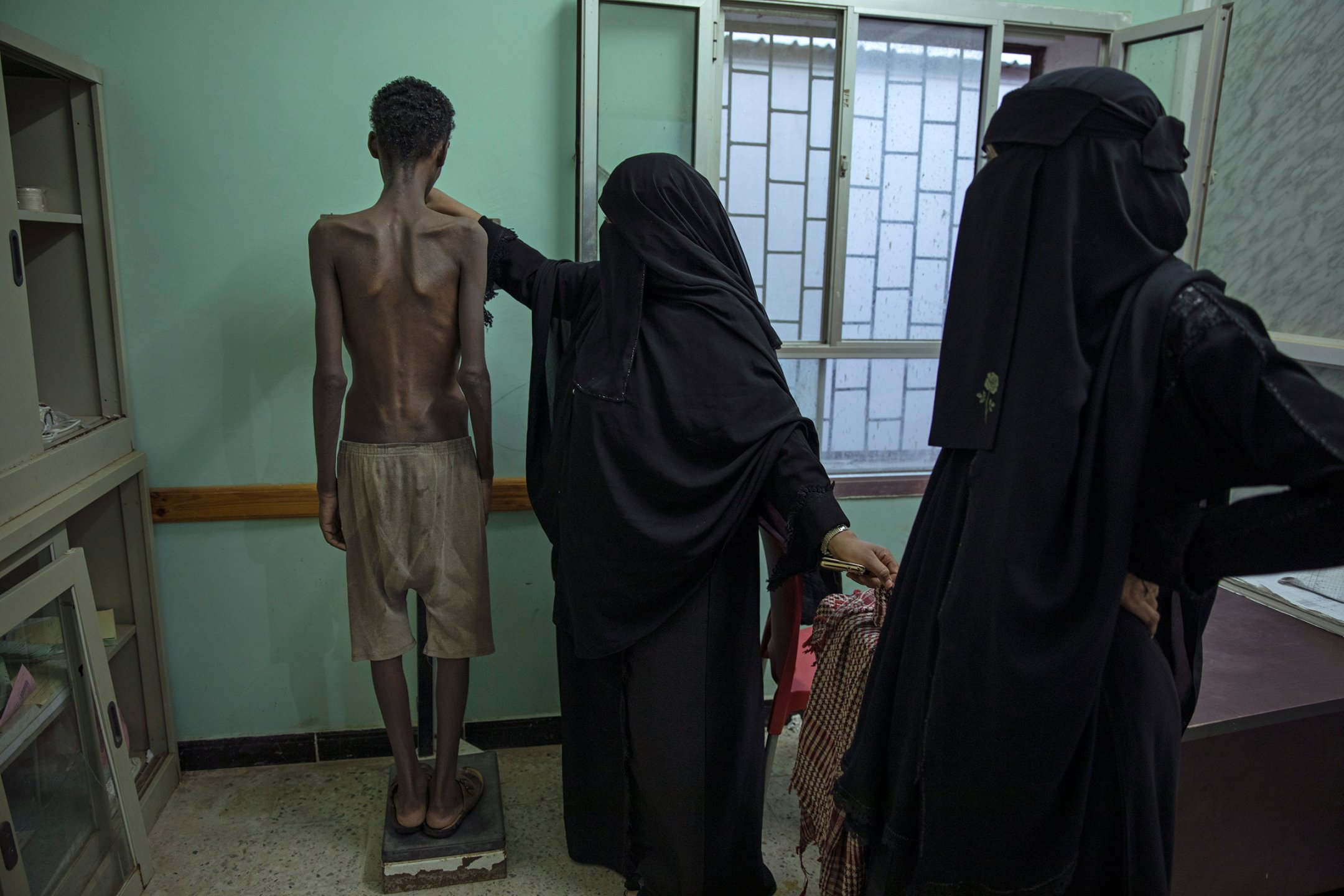 Ethiopian migrant Mohammed Hussein, who is severely malnourished from imprisonment by smugglers, stands on a scale at the Ras al-Ara Hospital in Lahj, Yemen, on Aug. 1. The 19-year-old weighs 31 kilograms (68 pounds).