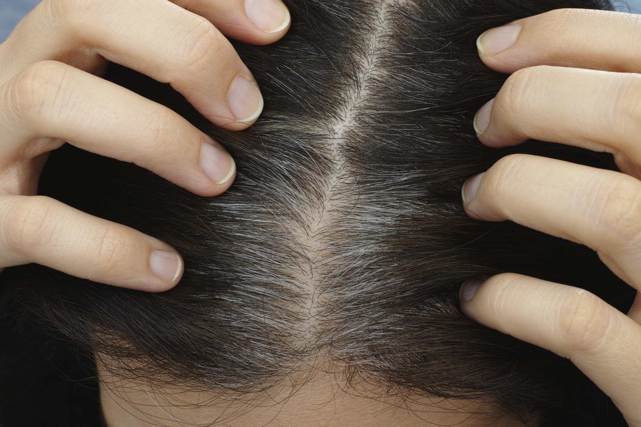 Scientists Confirm That Stress Can Indeed Turn Hair Grey