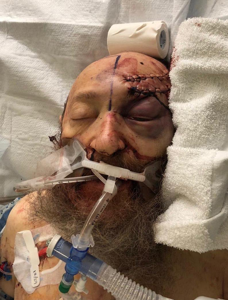 This image, shared by OJPAC on Twitter, shows Josef Neumann who was stabbed at the Hanukkah celebration Saturday night.