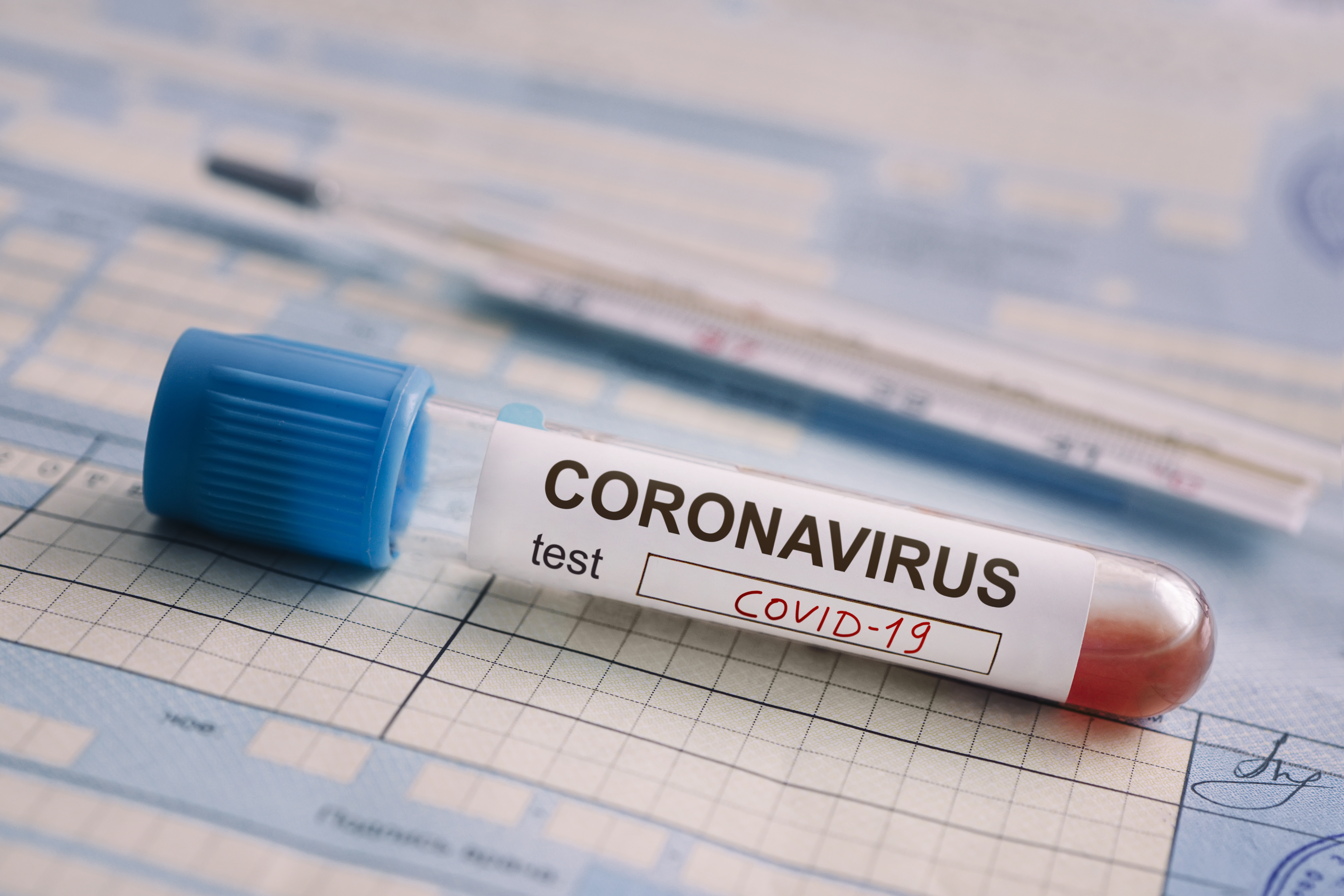 What you need to know to get coronavirus, COVID-19, test ...  |Test Covid