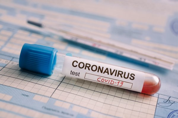 An At-Home Coronavirus Test May Be On the Way | Time