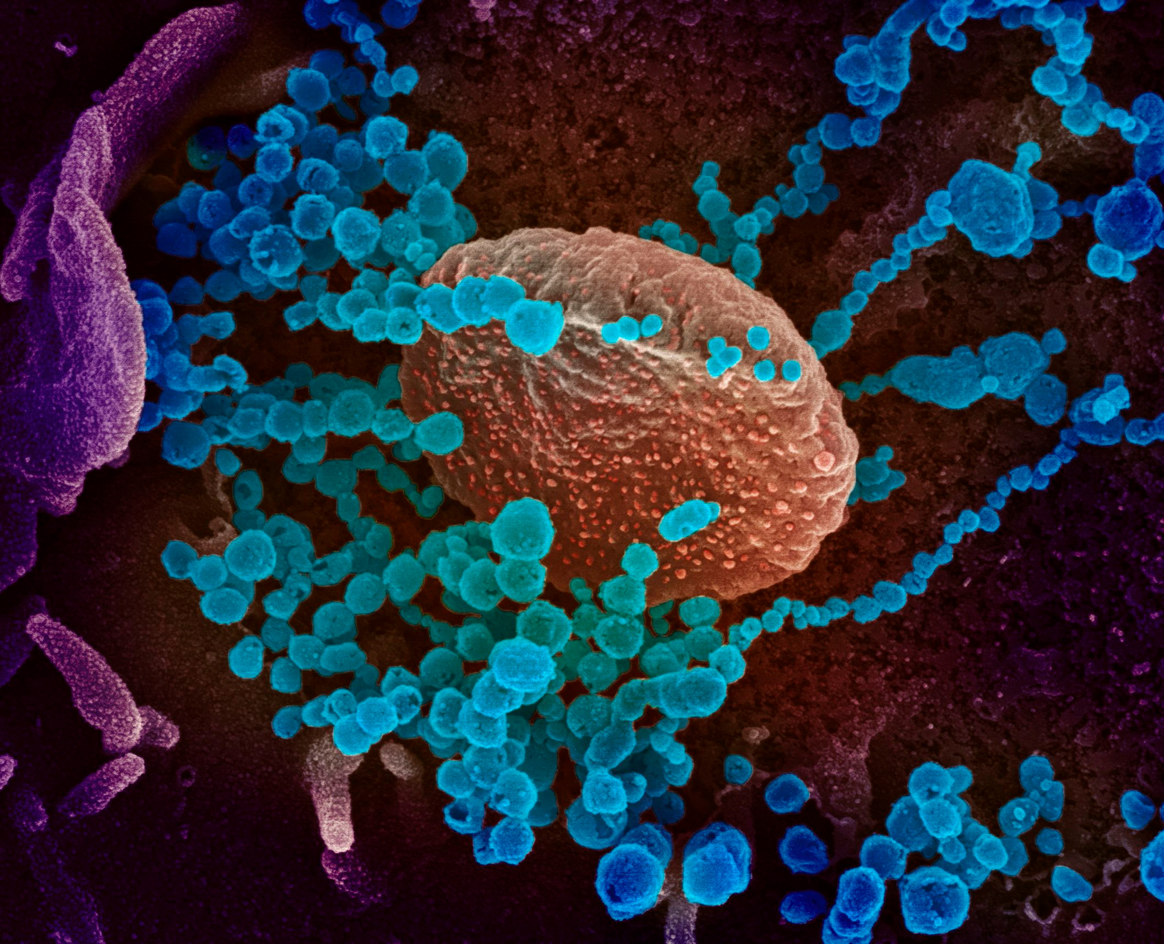 This image obtained on March 12 shows a scanning electron microscope image of SARS-CoV-2 (round blue objects) emerging from the surface of cells cultured in the lab, SARS-CoV-2, also known as 2019-nCoV, is the virus that causes COVID-19, the virus shown was isolated from a patient in the U.S.