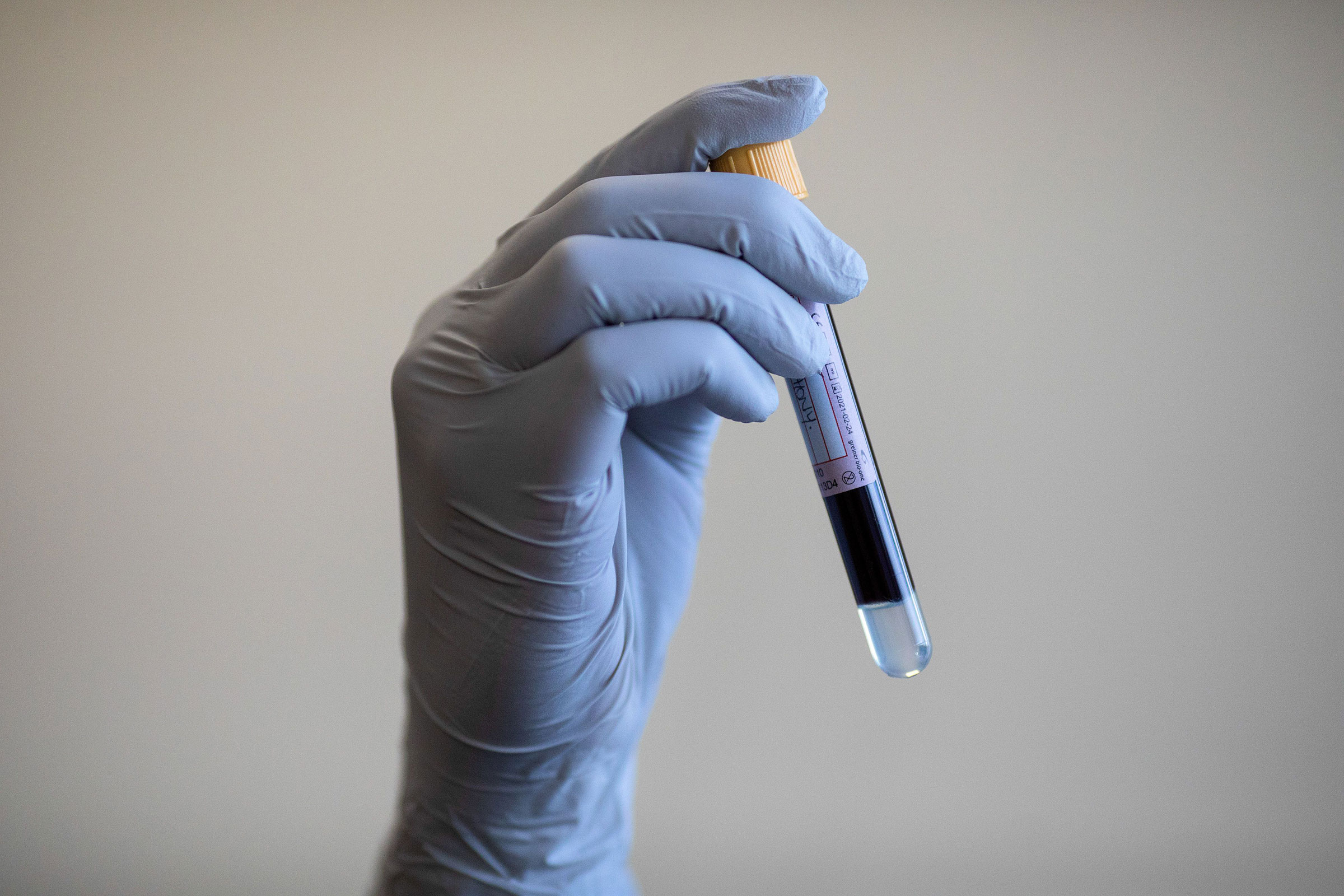A blood sample is held during an antibody testing program at the Hollymore Ambulance Hub of the West Midlands Ambulance Service in Birmingham, Britain, on June 5, 2020.