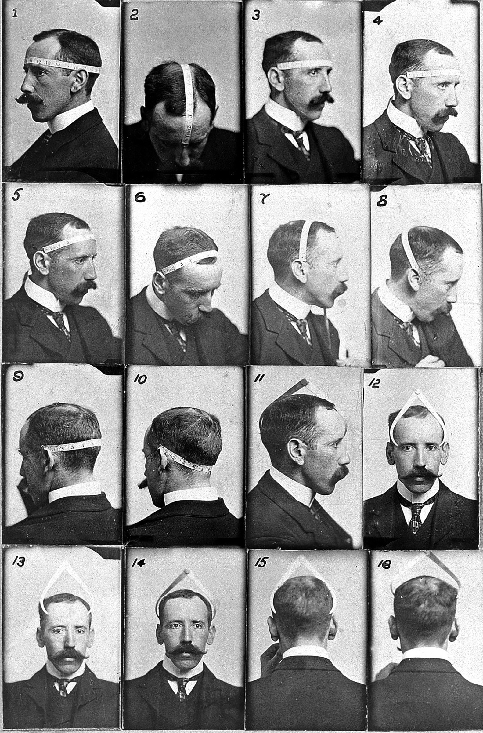 The Austrian-born Bernard Hollander favored a quantitative approach to phrenological diagnosis, and is shown here methodically measuring his own skull in 1902. His meticulous view of the critical role of cranial measurement mirrored Galton's in its obsessive assessment of statistical averages.