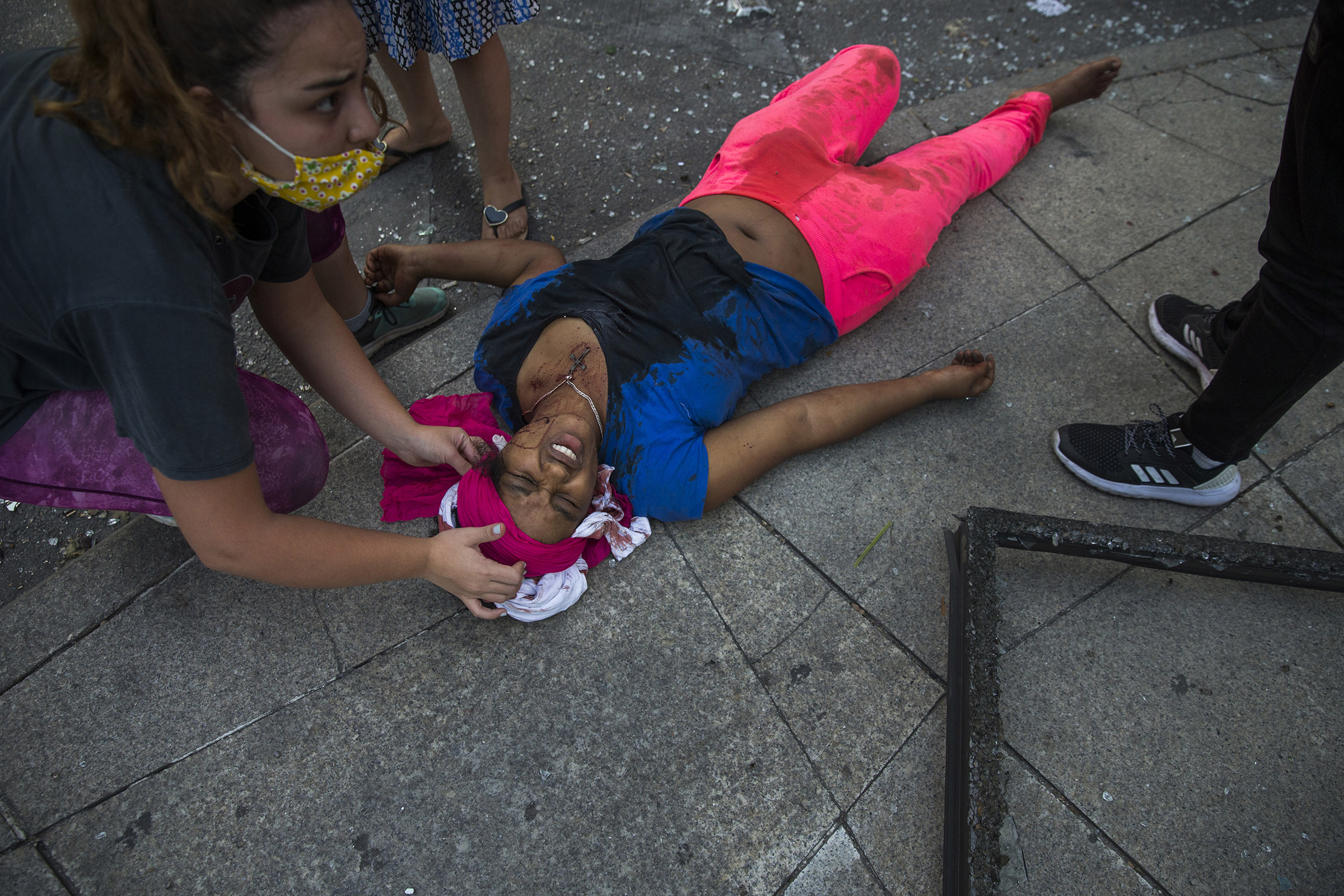 An injured woman lies on the sidewalk aided by bystanders after the explosion.