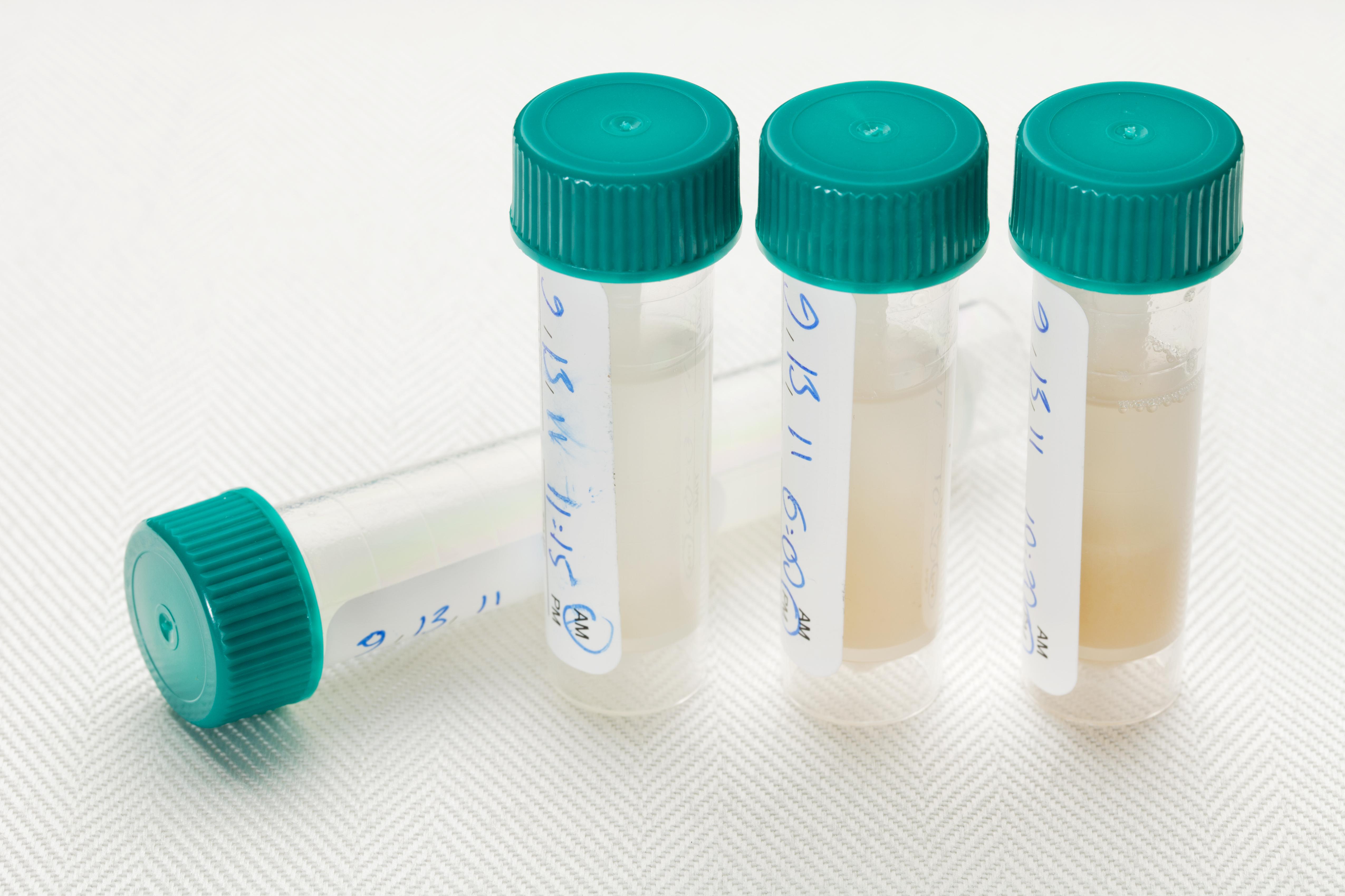 Samples of saliva in plastic tubes.