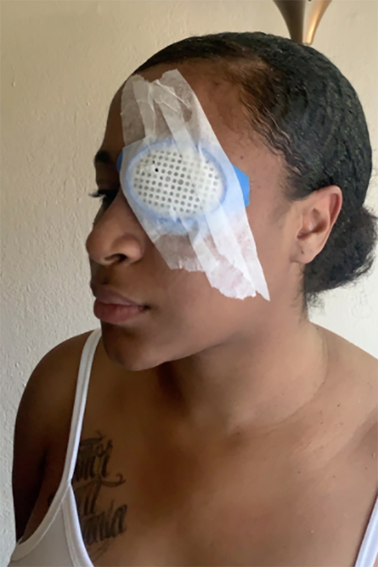 Shantania Love was hit by what she believes was a rubber bullet at a protest in Oak Park, Calif. on May 29, permanently blinding her right eye.