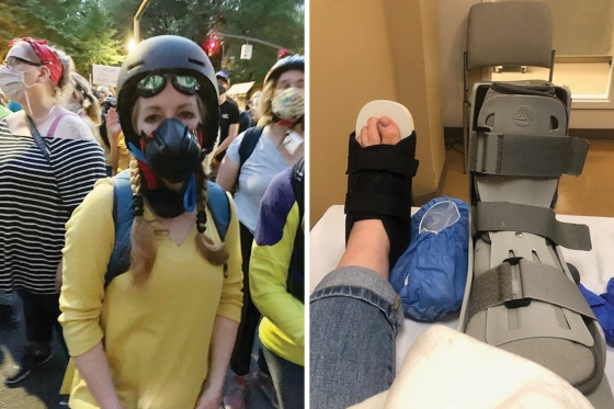 Ellen Urbani was hit in the foot by what she believes was a rubber bullet at a protest in Portland, Ore., on July 24, 2021.