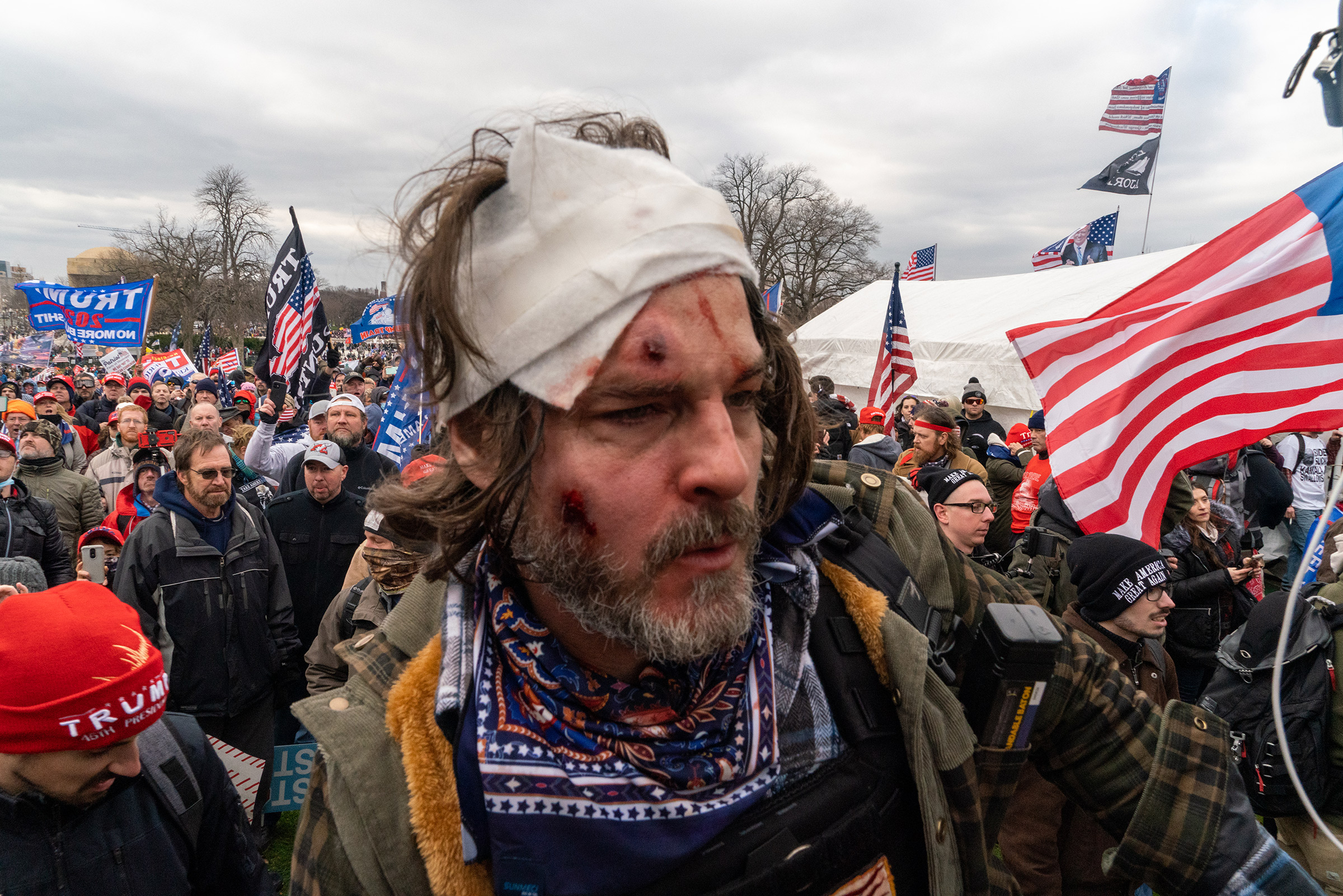 An injured pro-Trump supporters outside the Capitol building after clashes with police and security forces in Washington D.C., on Jan. 6.