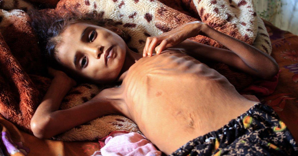 Yemen Faces World's Worst Famine in Decades, Warns U.N.