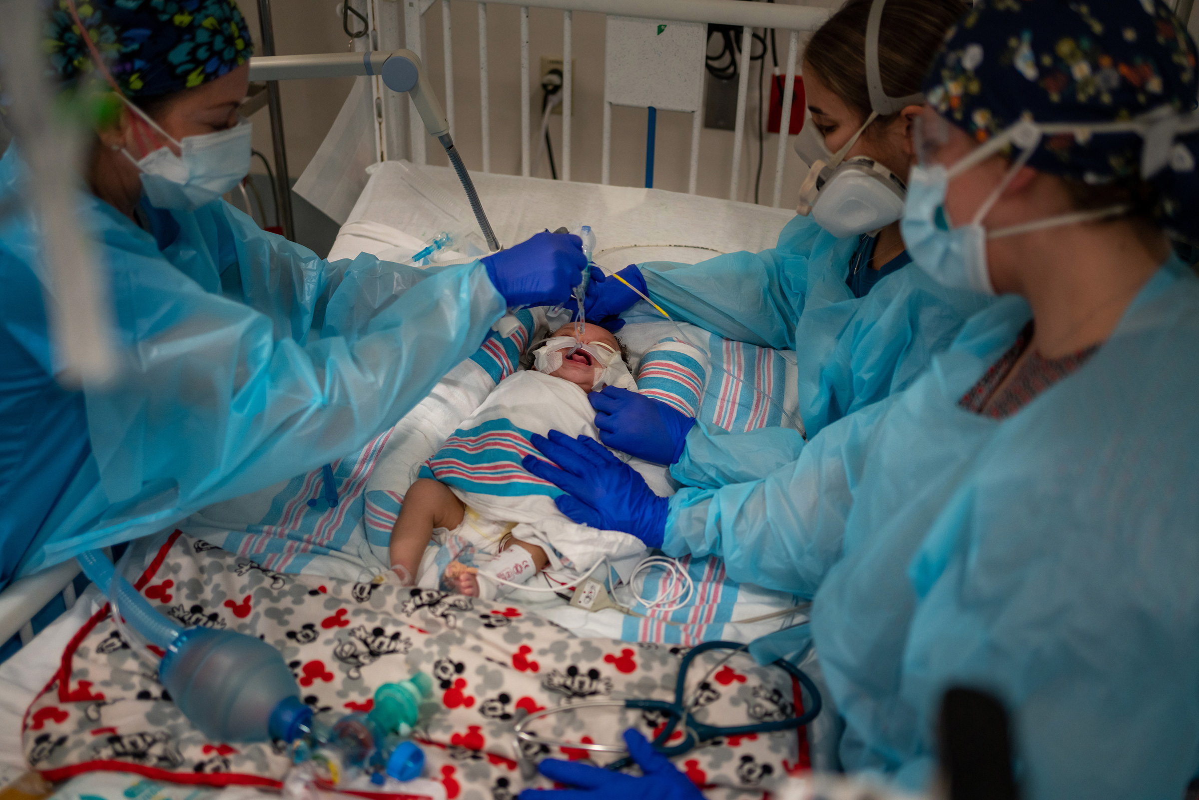 Two-month-old Carvase Perrilloux undergoes an extubation procedure, taking him off of the ventilator that has been keeping him alive.